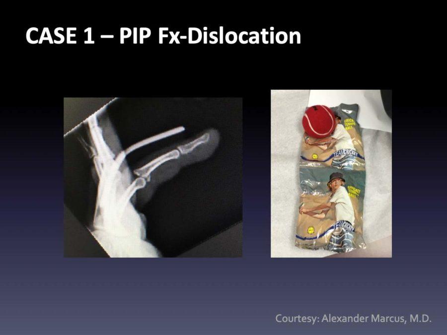 CASE 1: PIP Fx-Dislocation