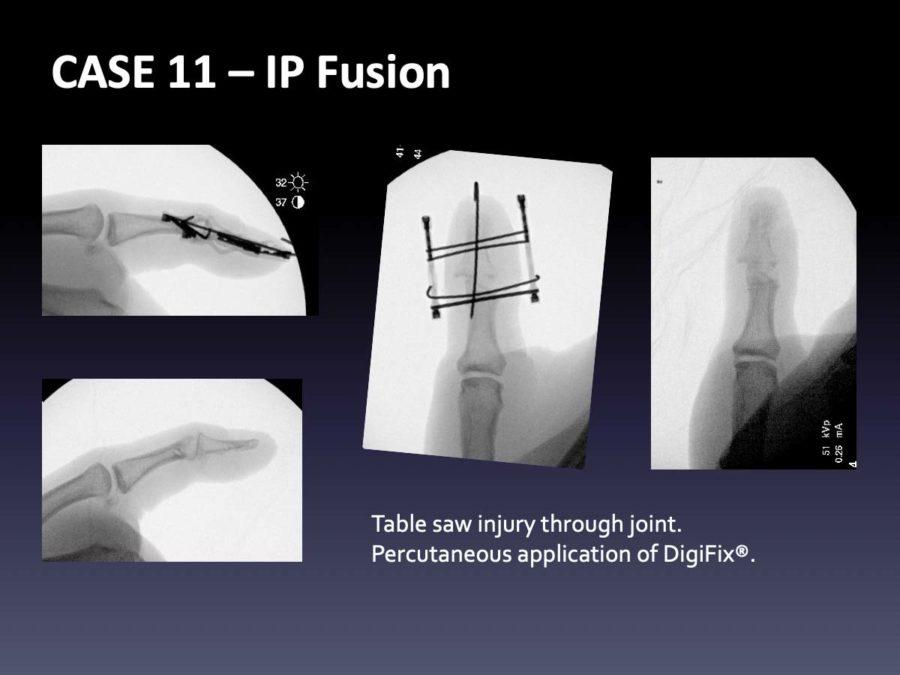 CASE 1: IP Fusion
