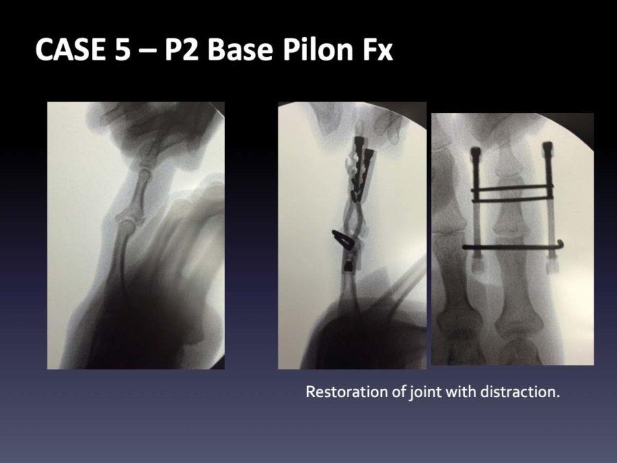CASE 5: P2 Base Pilon Fx