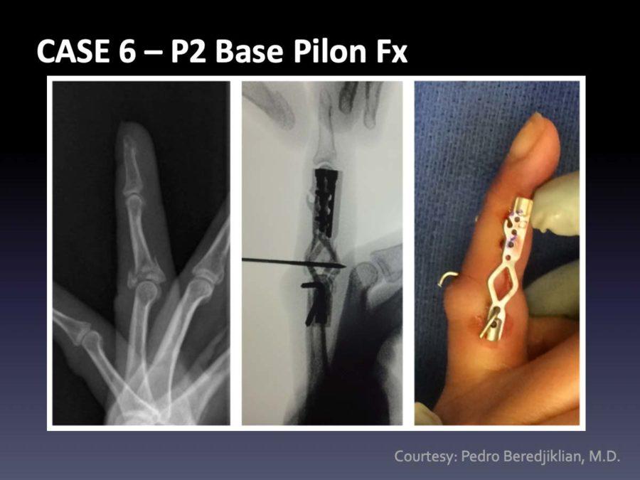 CASE 6: P2 Base Pilon Fx
