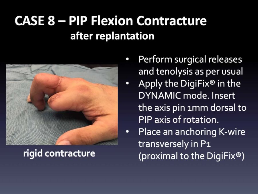 CASE 8: PIP Flexion Contracture after Replantation