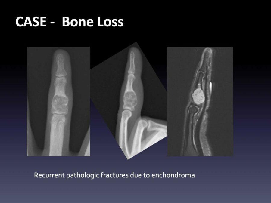 CASE: Bone Loss