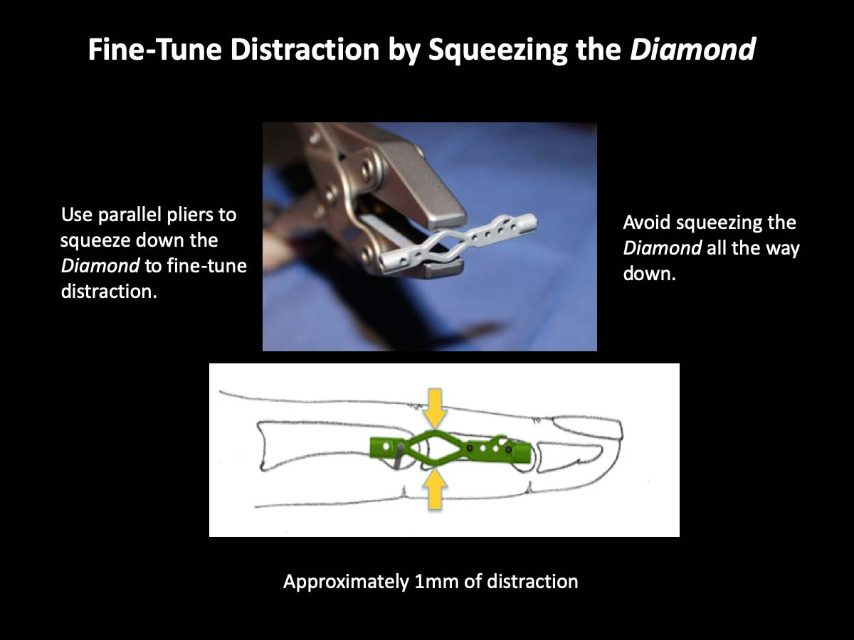 Fine-Tune Distraction by Squeezing the Diamond