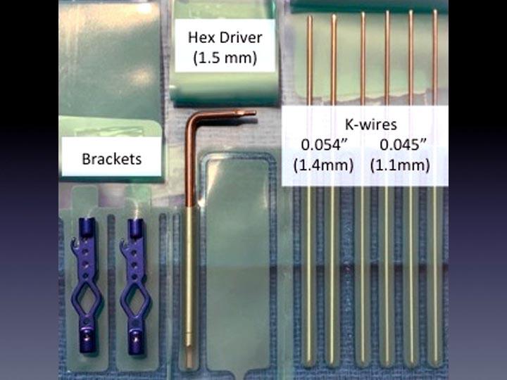 Virak Orthopedics Announces the Release of the DigiFix® Sterile Kit